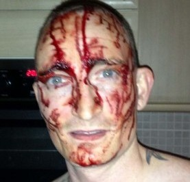 A blood soaked Chris Afford after he cut himself then claimed that Asian men had attacked him in a racist attack