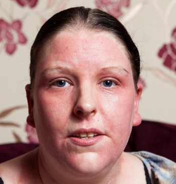 Corriann Brown, 32, with the rash on her face that she says has turned her into The Fly