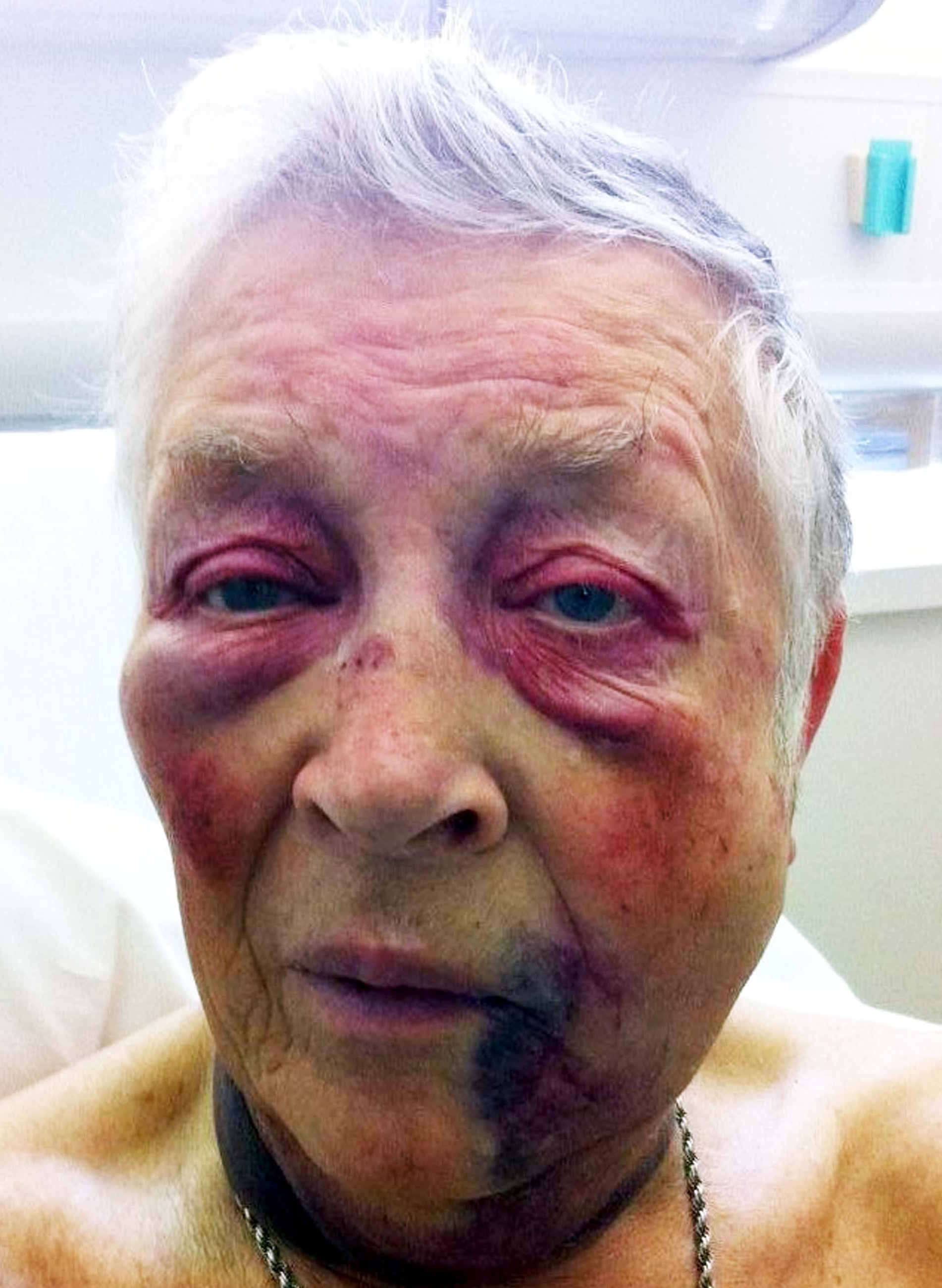 William Hopkins suffered a fractured jaw after being beaten and robbed outside his home in Birmingham