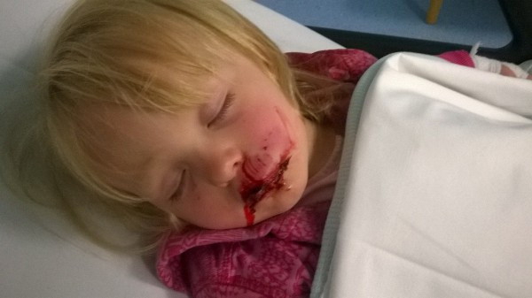 Lily-May after the attack which has scarred her face