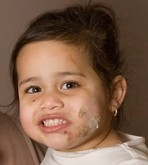 Lauren Henry with her daughter Destiny Henry-Kahn whose face was savaged and left scarred by a mongrel dog