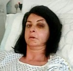 Morag in hospital with her injuries