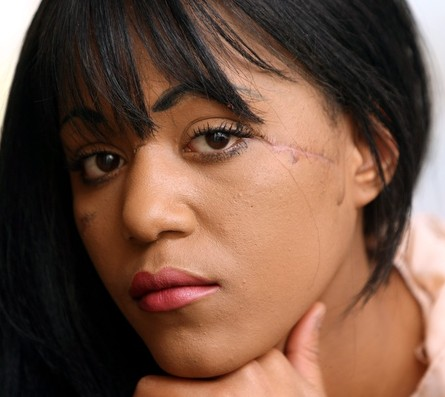 The scars on Lasha's face which have now effectively ended her dream modelling career