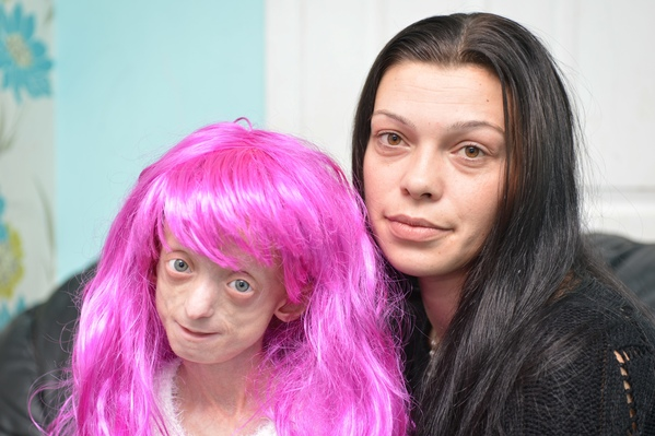 Ashanti Elliot Smith who suffers from Hutchinson Gildford Porgeria with her mum Phoebe Smith, 29, and the wig a teacher forced her to remove