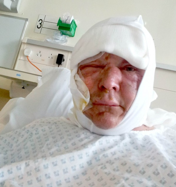 Steve Davies pictured in hospital during his treatment for burns,1 day after he was engulfed in a BBQ fireball