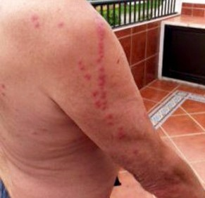 Micheal Hatch with bed bug bites on his right arm