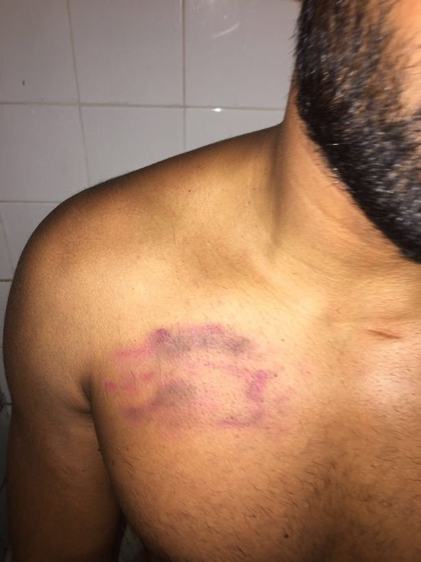 Amo Singh, 33, also known as Amandeep Cheema shows his injuries.