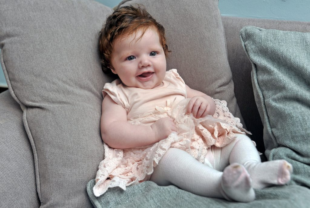 Pixie Rose Masters from Farnworth, Lancs., was born with a thick mop of hair.