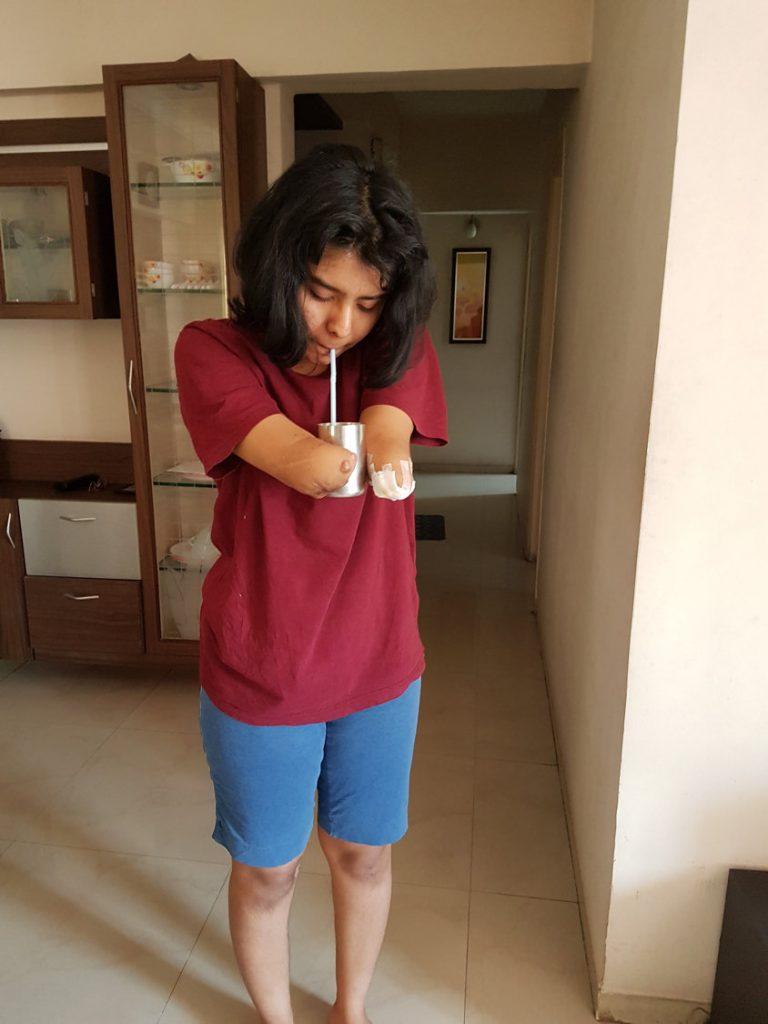Shreya Siddanagowda post hand loss.