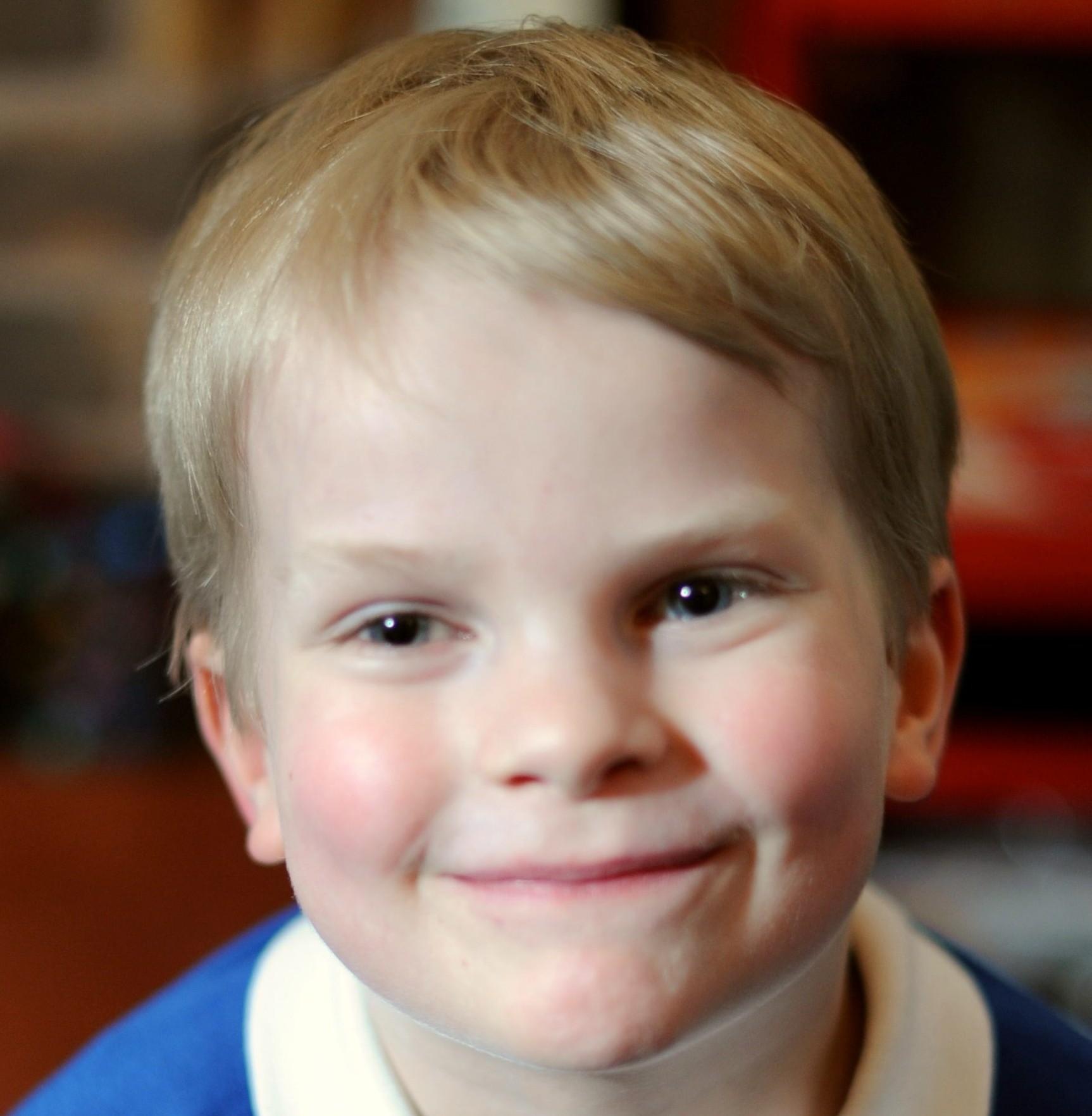 Jack Lavers-Mason, who is allergic to sunshine