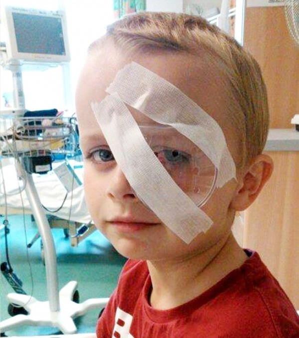 Kyle Lawrence whose left eye was injured by a loom band