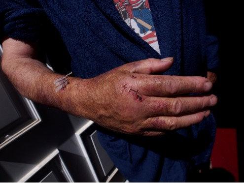 Bob Harrison cut and bruised arm.