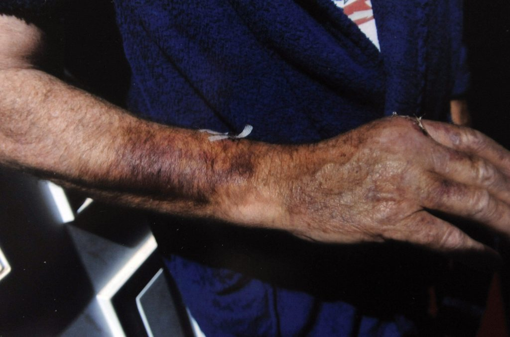 Injuries sustained by Bob Harrison of Morecambe, Lancs., after he was attacked with a plank of wood by a group of youths.