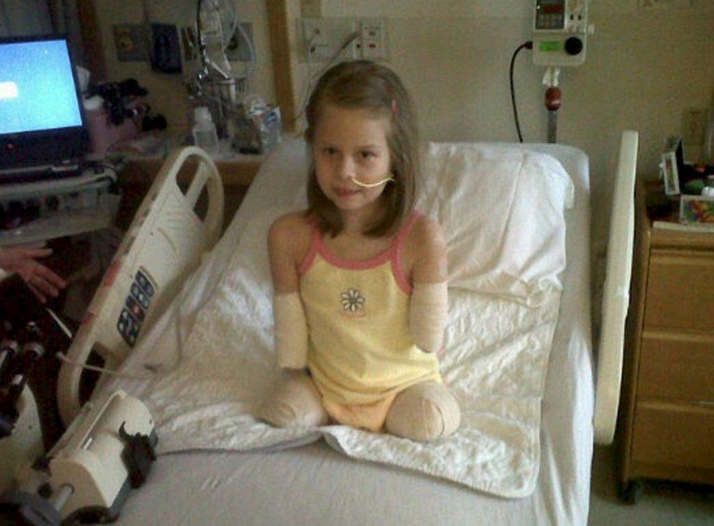 Bella Tucker who lost her limbs to meningitis.