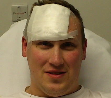 Clark Bailey's burns after he tried to help his girlfriend in the kitchen and a pressure cooker exploded in his face