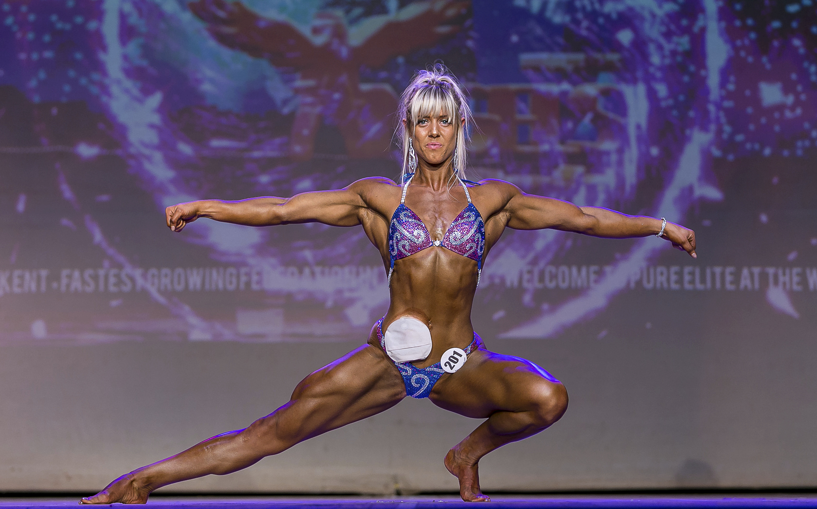 Colostomy Bag Wearing Bodybuilder Crowned World Champ - SWNS