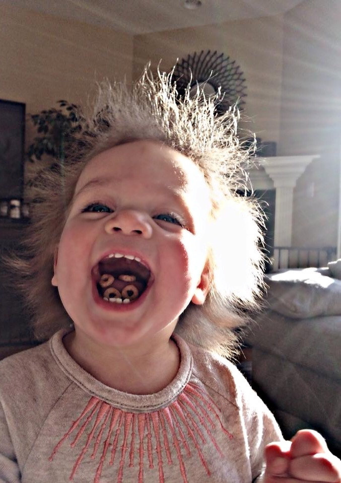 This adorable baby has 'Uncombable Hair Syndrome' and is ...