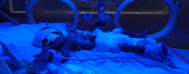 hospitals turns one today after she was born before the legal abortion limit.