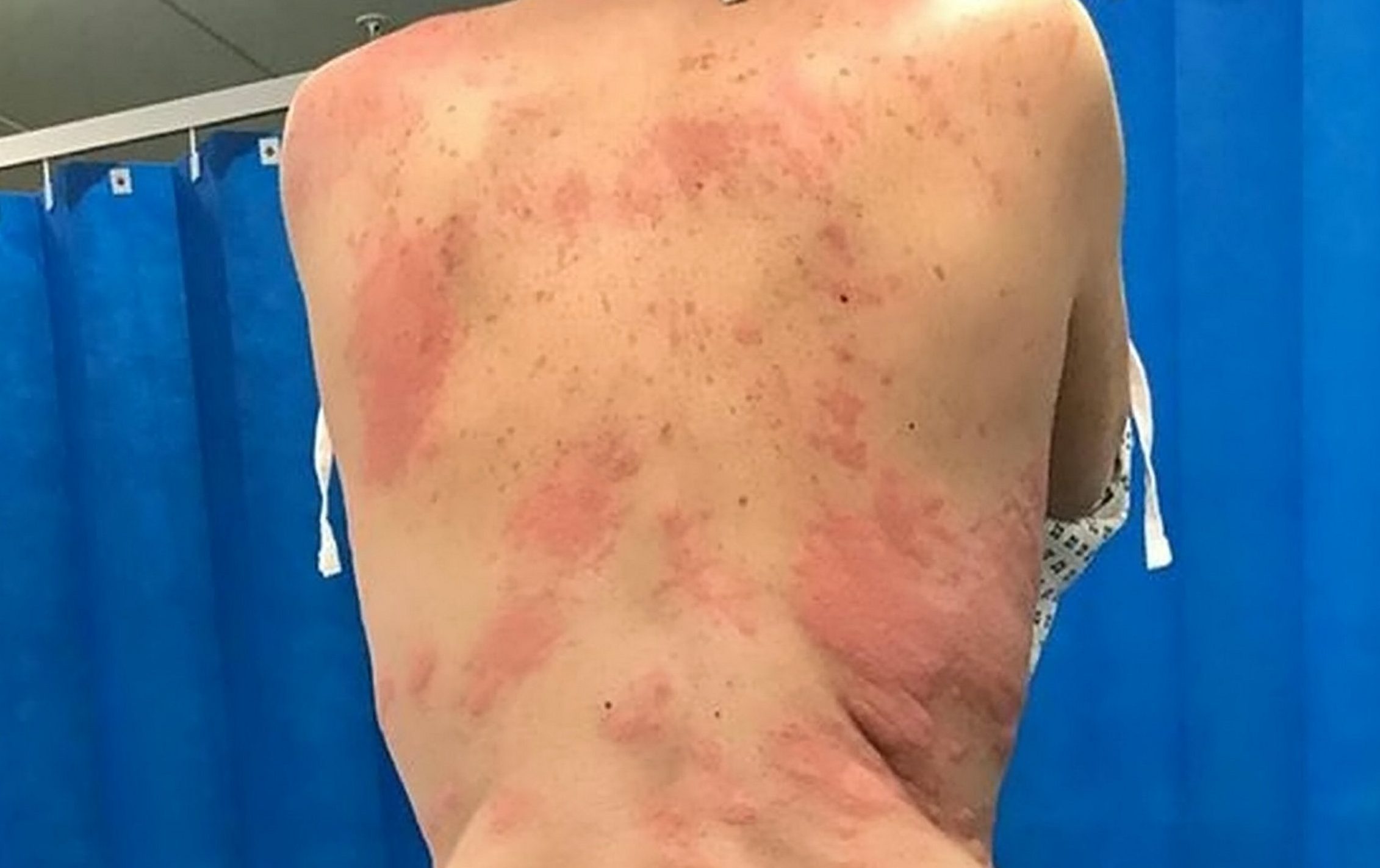 Mum was left with painful burn-like rashes all over her body