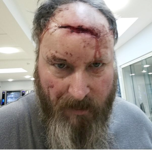 Man Left With Serious Head Wound After Mugger Demands His